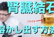 20170831 sam 自然治癒 腎臓結石.001